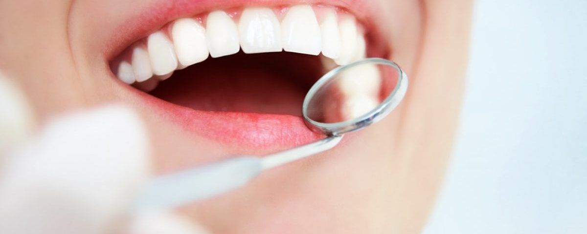 dientes-coronas