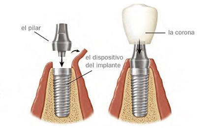 implantología capilar inboca