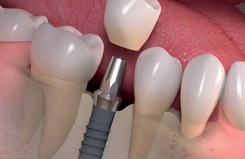 implantes-dentales-revolucion-4