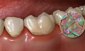 cepillado-dientes-noche-2
