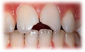 golpes-dientes-leche-3