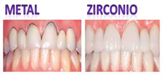 coronas-zirconio-emax-disilicato-litio-4