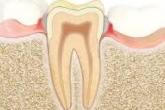 gingivitis-4