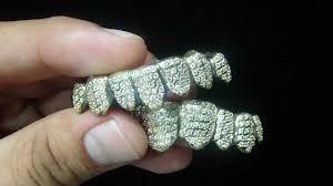 adornos-dentales-1