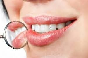 adornos-dentales-2