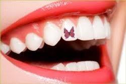 adornos-dentales-3