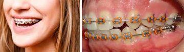 tipos-ortodoncia-3