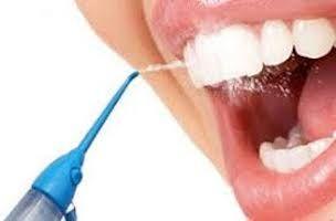 irrigadores-dentales-2