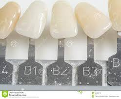tinciones-dentales-1