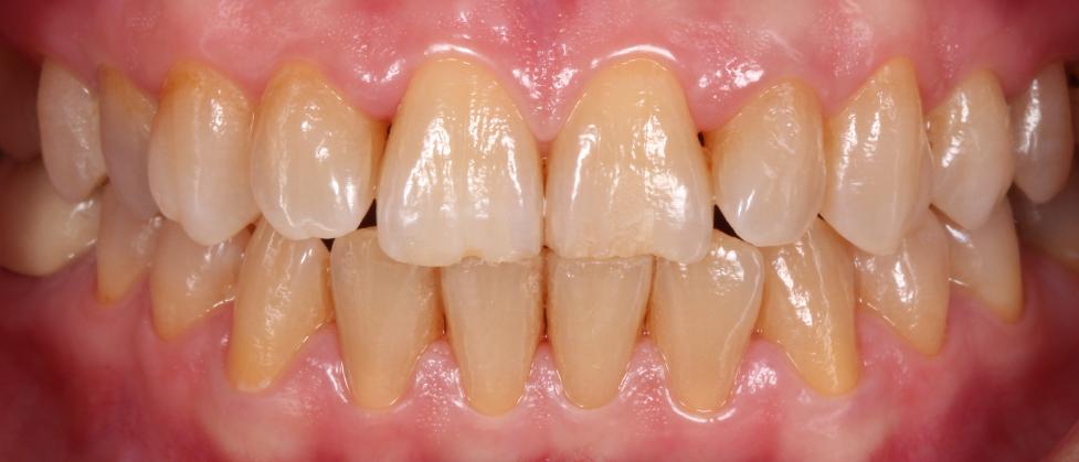 antes - carillas dentales alicante - fotos antes y despues - dentistas alicante - clinica inboca