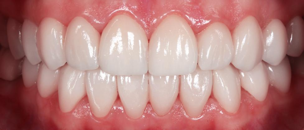despues - carillas dentales alicante - fotos antes y despues - dentistas alicante - clinica inboca